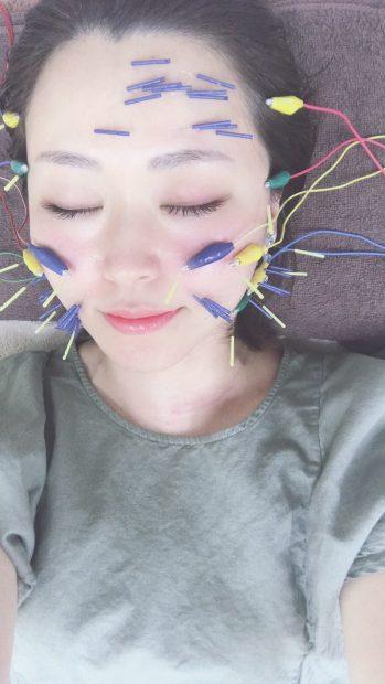 名古屋の美容鍼なら中部治療院